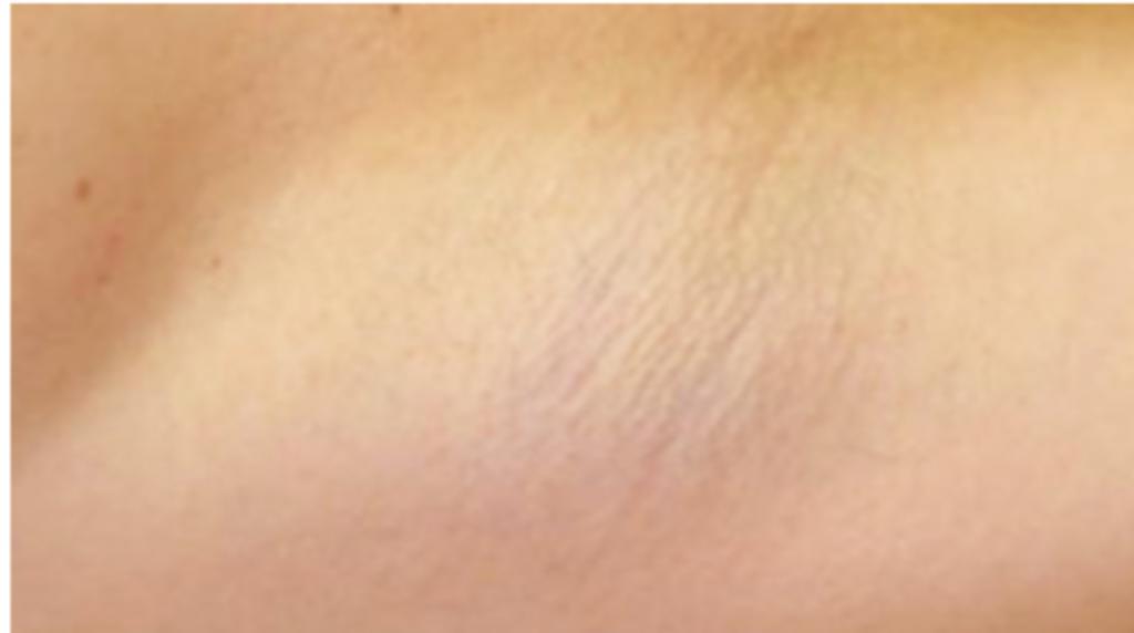 Motus AY hair removal after image 1