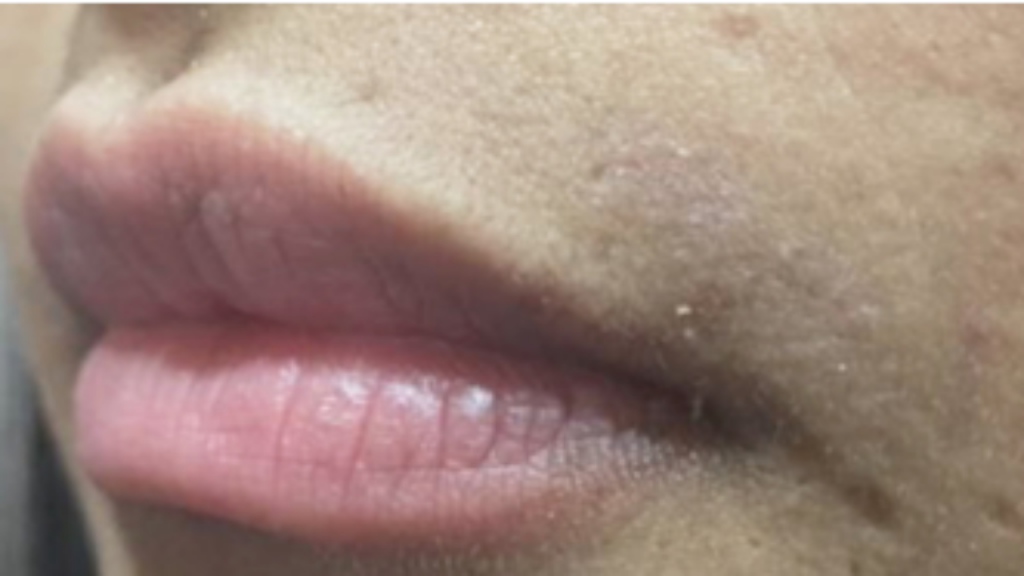 Motus AY hair removal after image