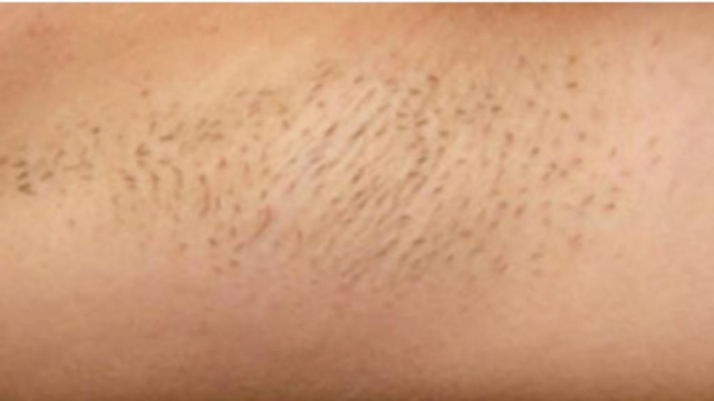 Motus AY hair removal before image