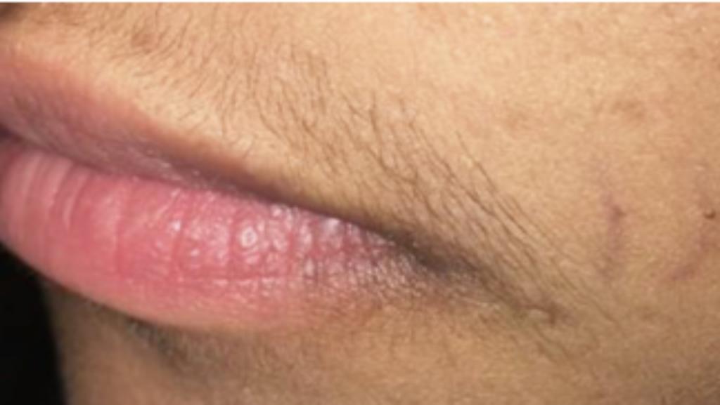 Motus AY hair removal before image 2